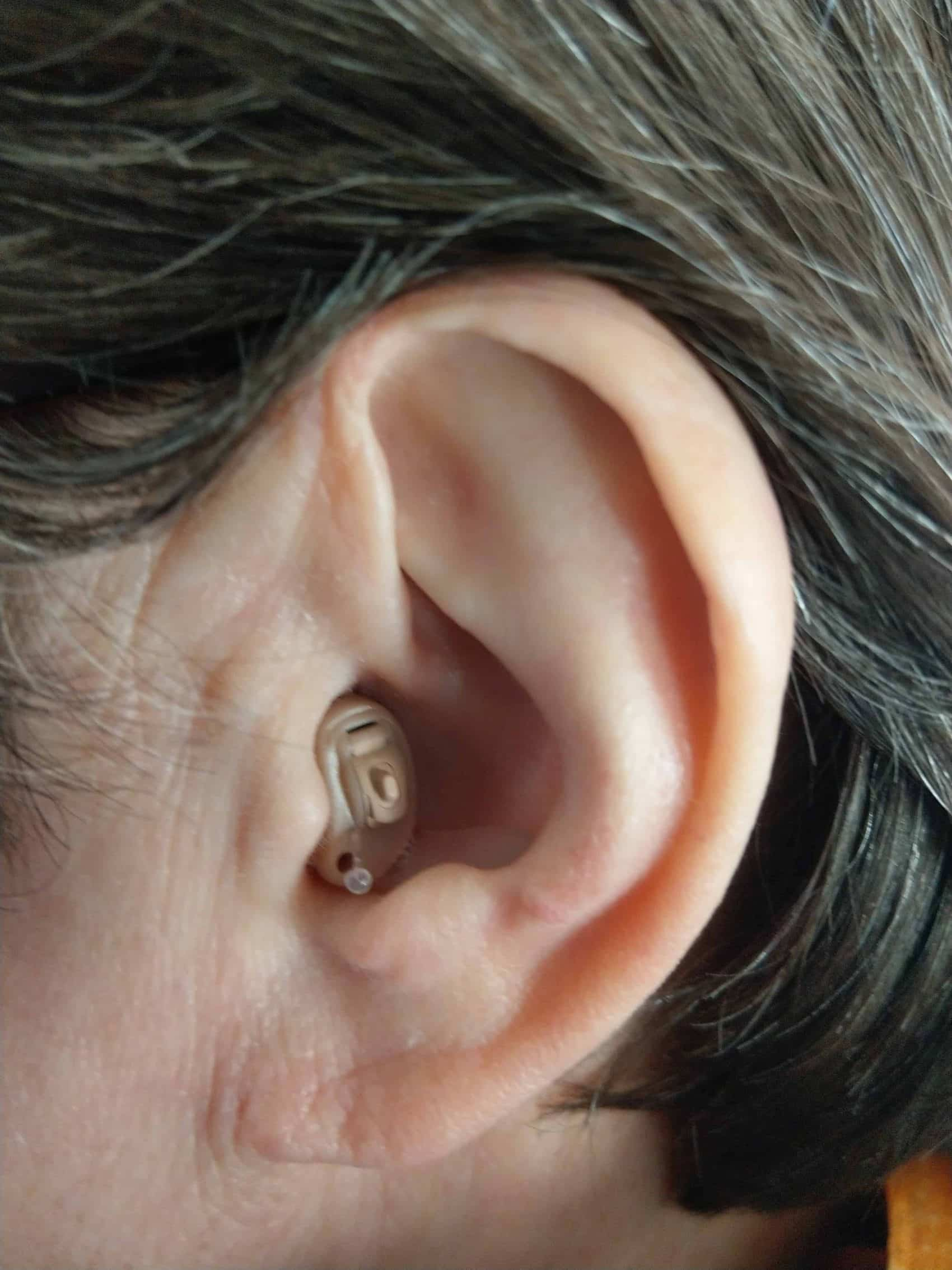 A CIC hearing aid fitted with a CANAL LOCK